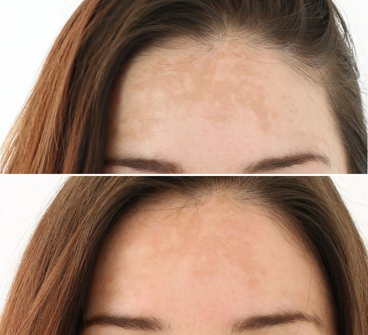 forhead-closeup