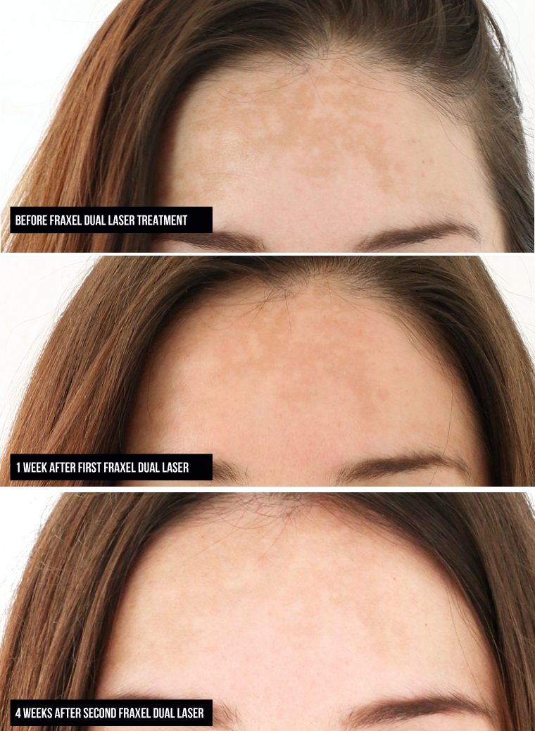fraxel-laser-treatment-forehead-closeups-1-and-2